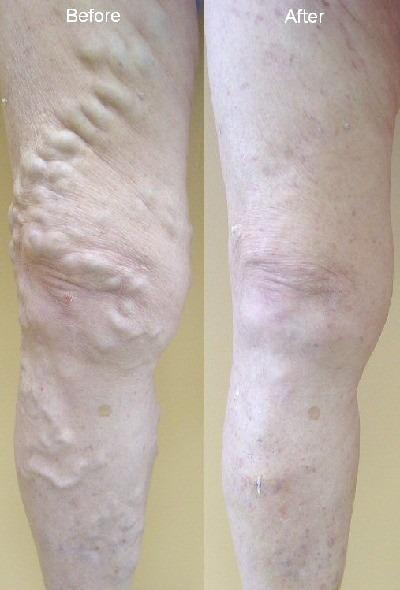 destin vein center florida varicose spider cosmetic leg pensacola doctor physician specialist